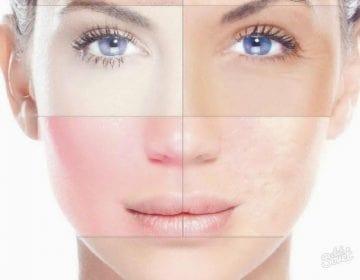 Як визначити свій тип шкіри обличчя